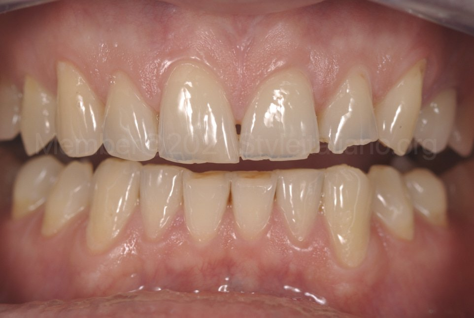 chipped teeth in young patient