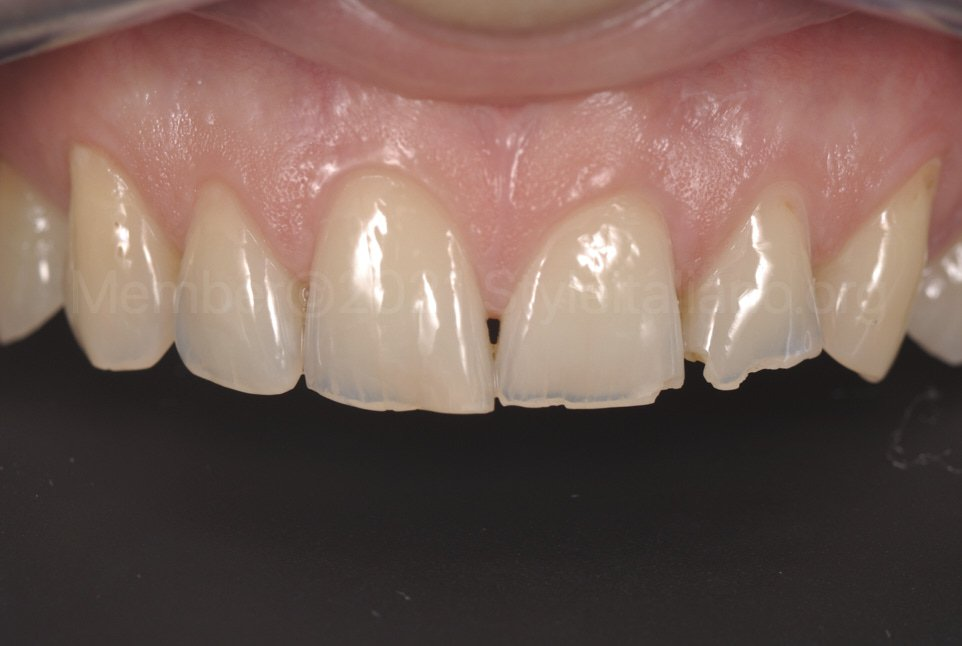 contrasted picture of chipped teeth