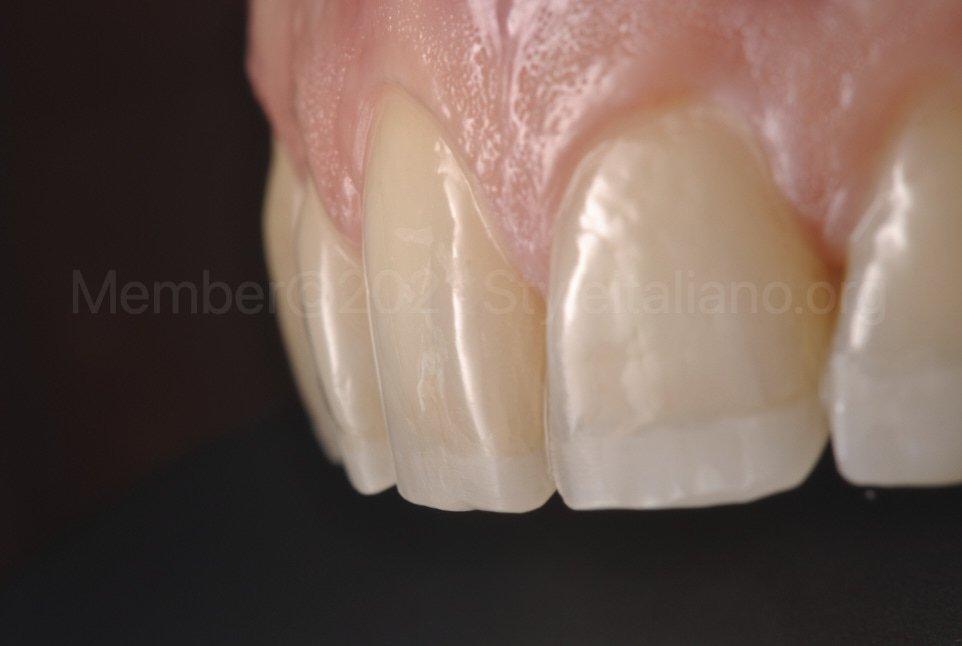 incisal lengthening with palatal veneers
