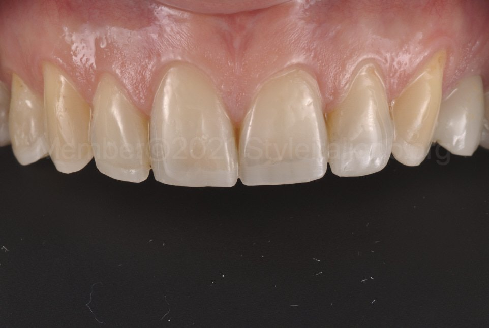 upper teeth after increase of vertical dimension