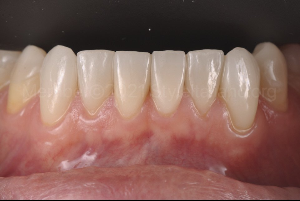 veneers on lower arch for increase of vertical dimension