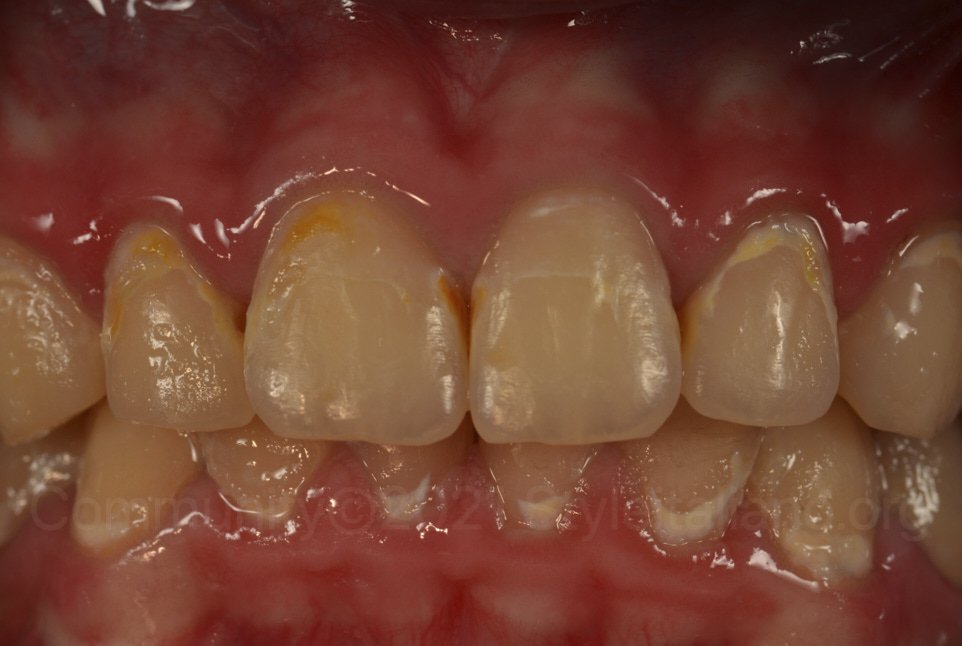 teeth with multiple demineralisations