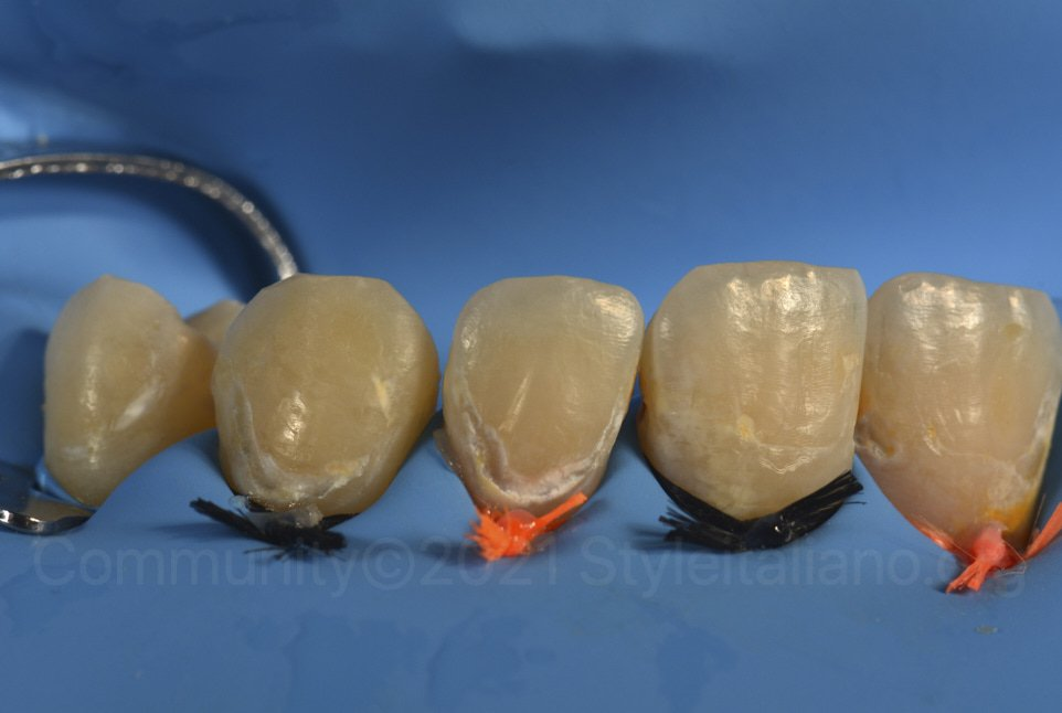 clean teeth with cervical demineralizations