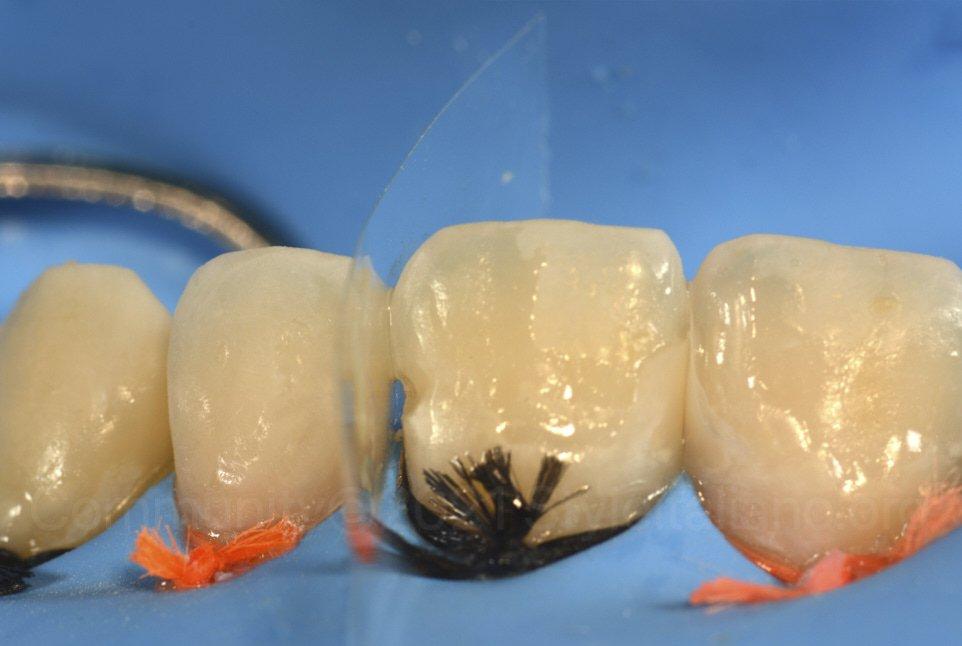 transparent strip during proximal composite layering
