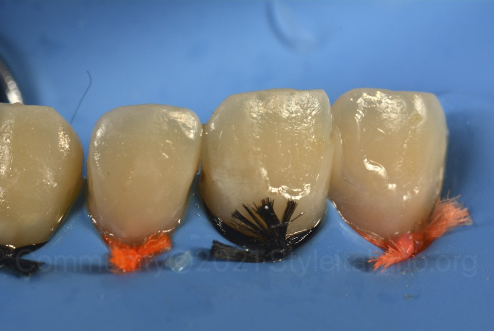 composite additions on upper incisors before finishing