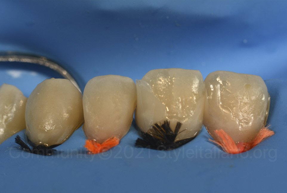 incisors with unfinished composite restorations