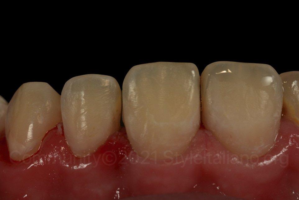 upper left incisors after resin infiltration and composite restoration