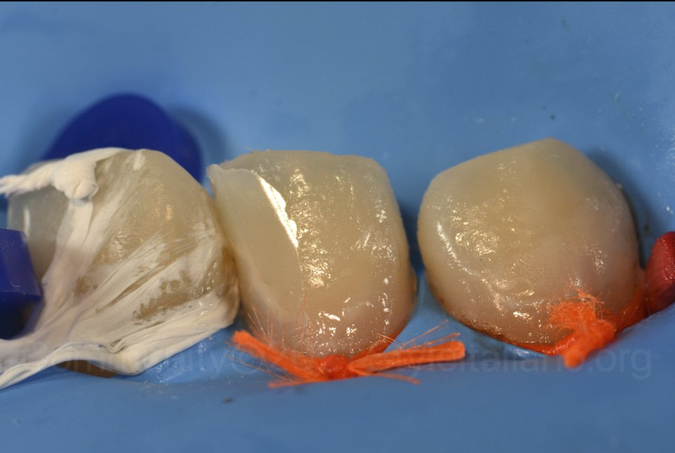 composite restoration of infiltrated teeth