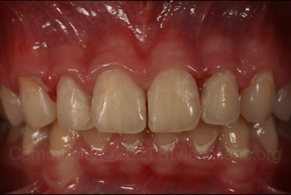 upper teeth after resin infiltration