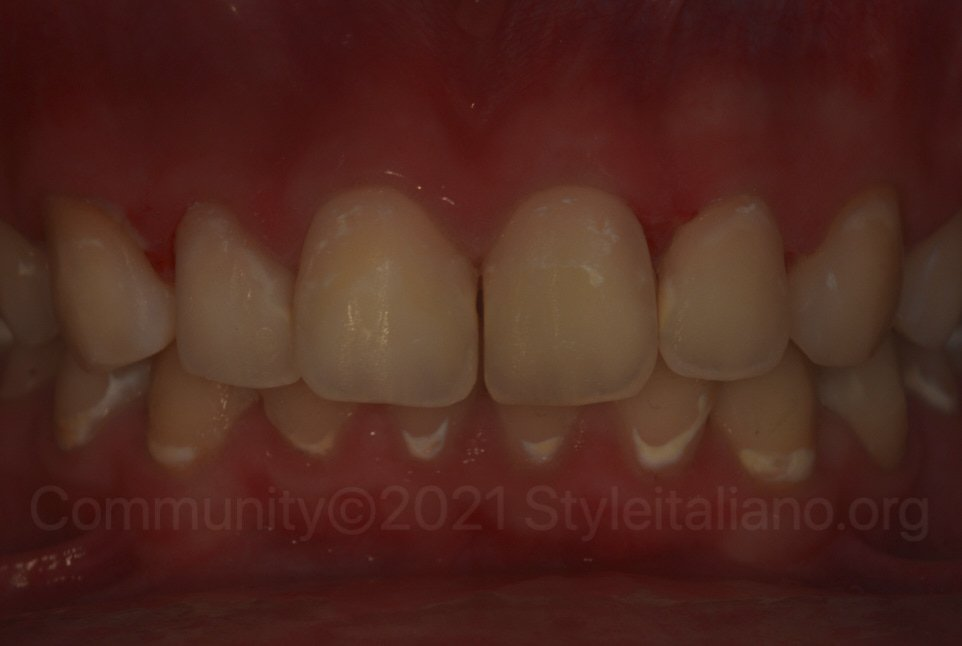 polarized picture of upper arch after resin infiltration