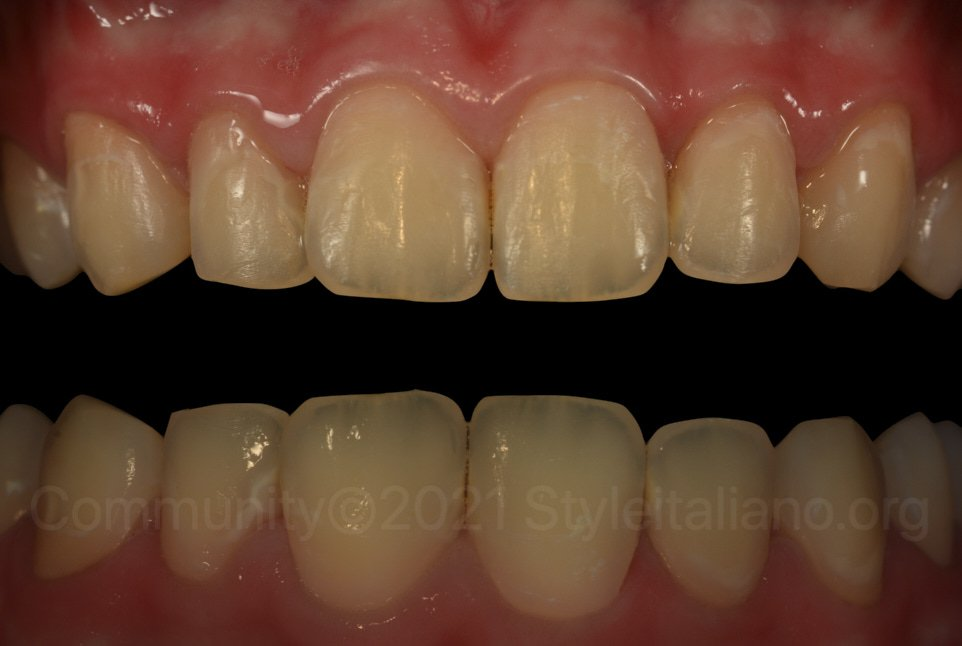 polarized and non-polarised picture of infiltrated teeth