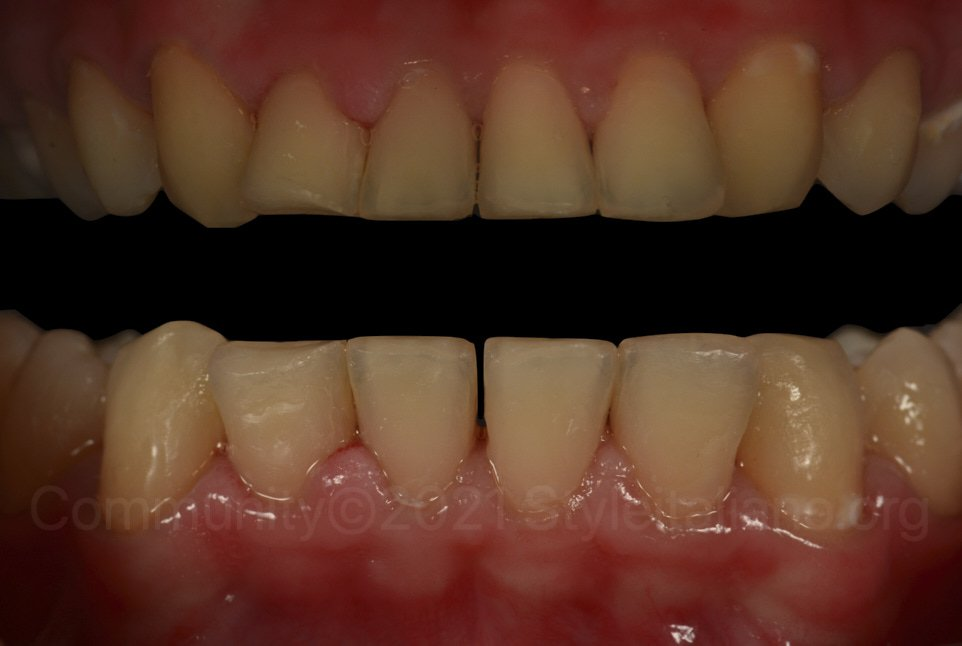 polarized and non-polarised picture of infiltrated lower incisors