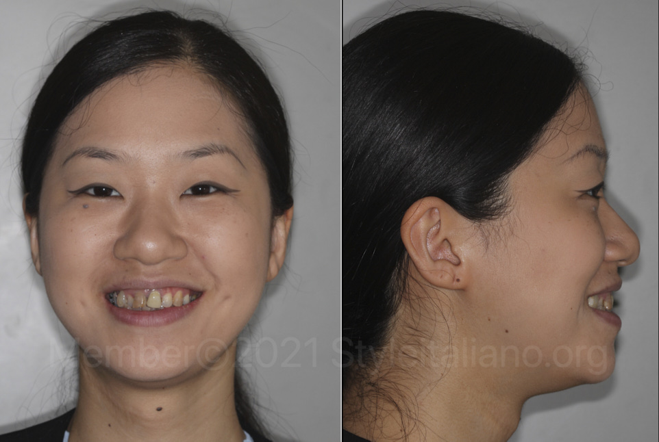 young patient looking to improve her smile