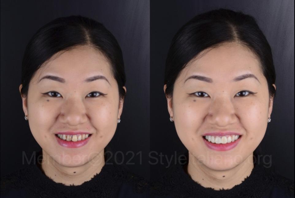 emotional mock-up before smile makeover