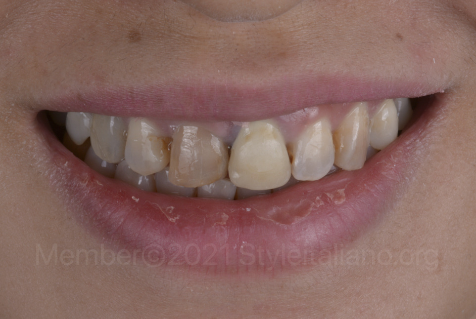 smile after orthodontic alignment