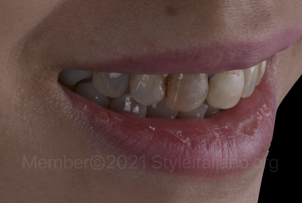 side view after orthodontic alignment
