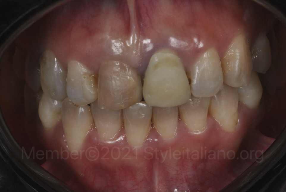 intraoral post-ortho situation