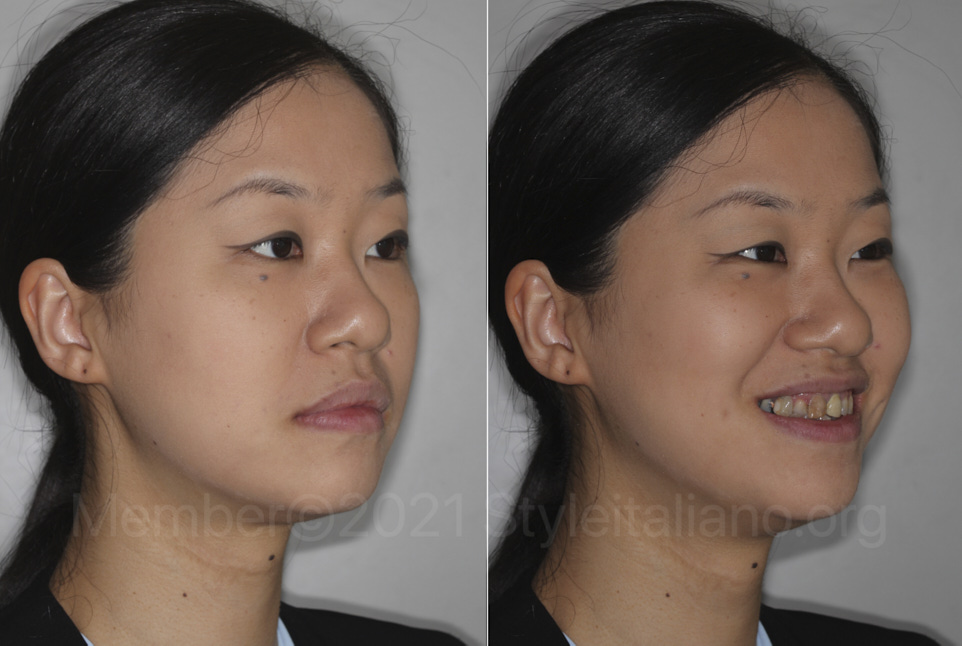woman before dental makeover