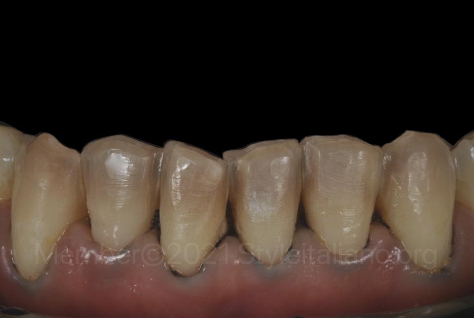 lower teeth prepared for veneers