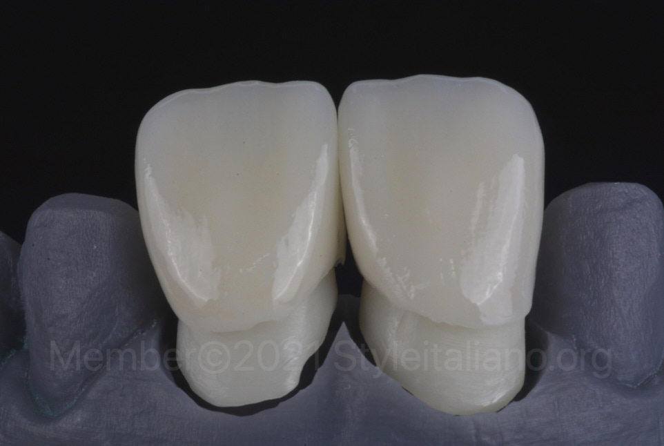 lithium disilicate crowns on zirconia copings