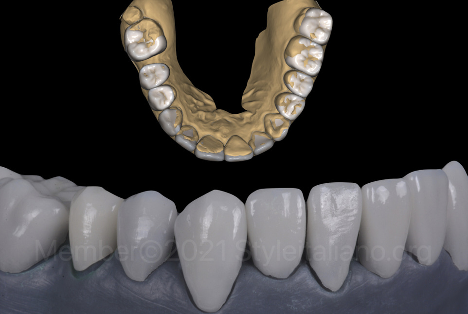 digital and real model with veneers and crowns
