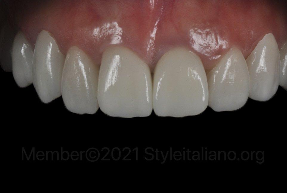 veneers and crowns on upper teeth