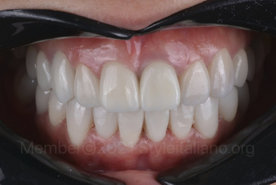 after cementation of crowns and veneers