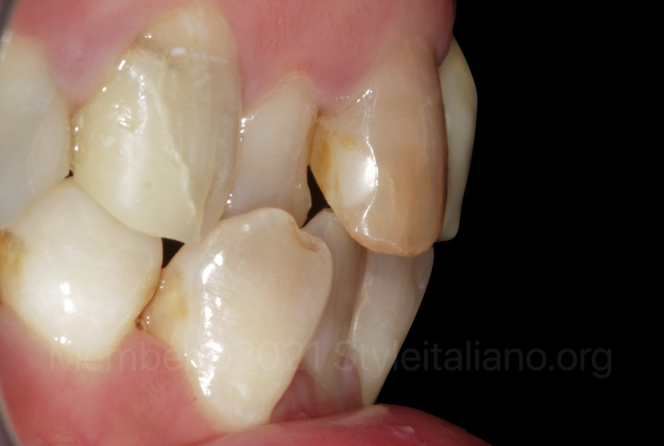 lateral view of misaligned and stained teeth
