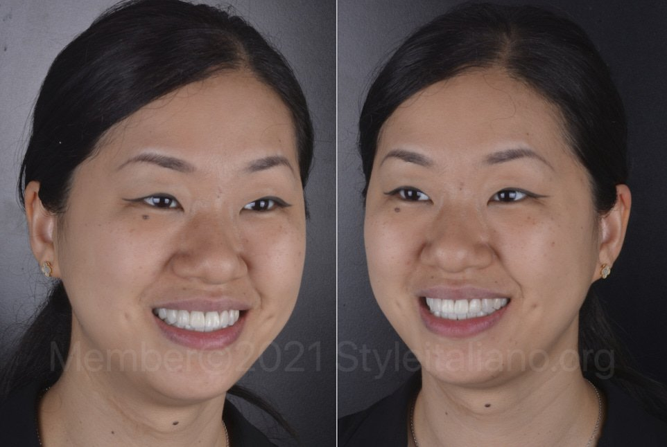 happy woman after full smile makeover