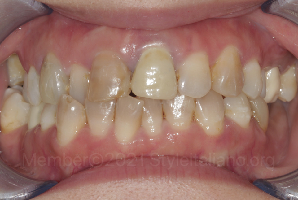 intraoral picture of misaligned teeth