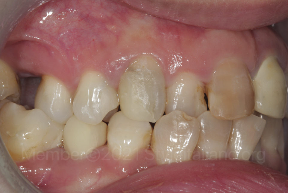 missing and decayed teeth