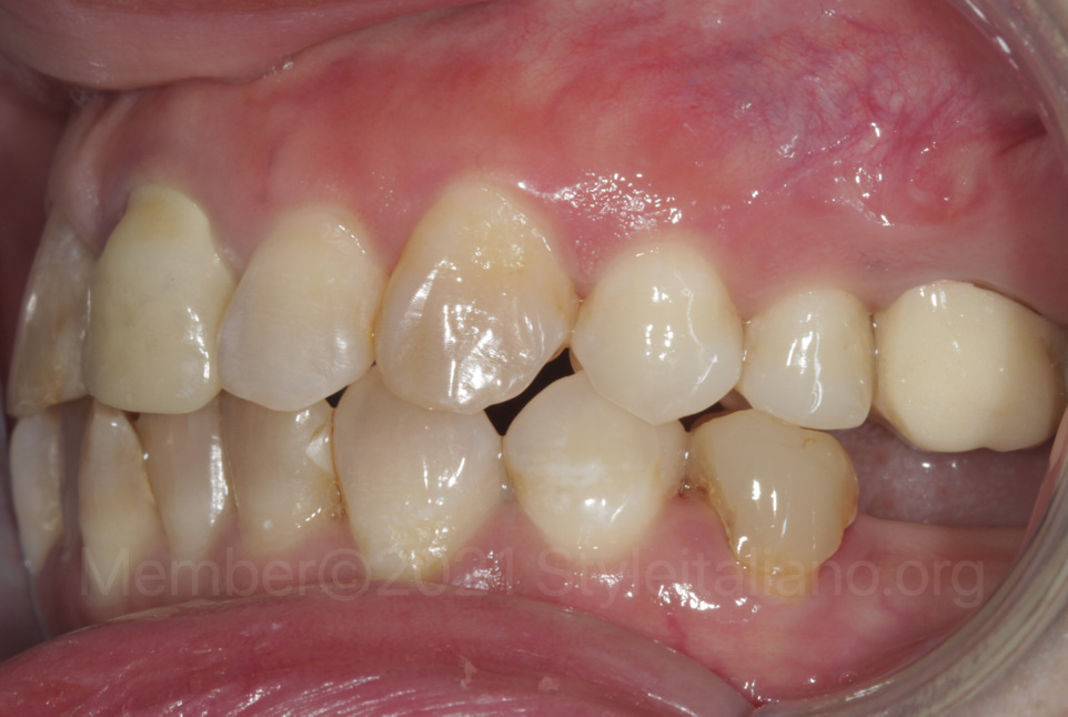 missing and stained teeth