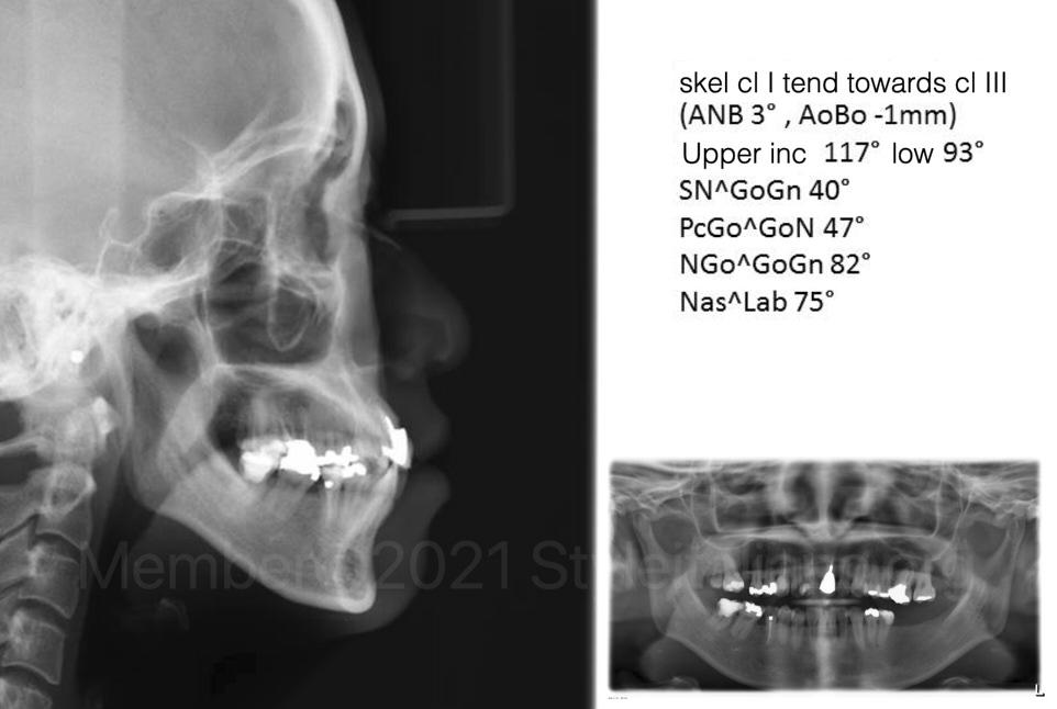 xray for orthodontic skeletal evaluation