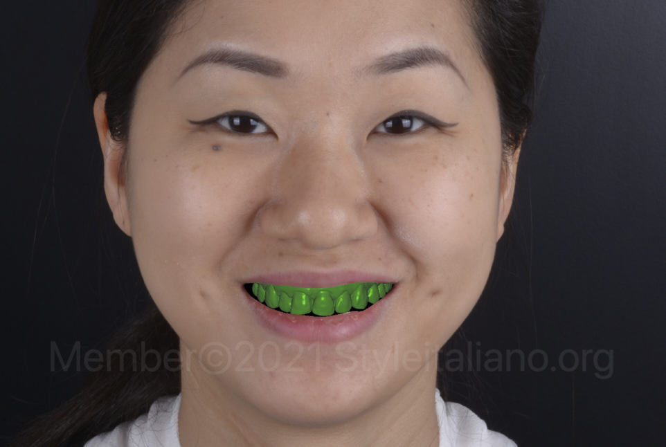 digital scan of the patient's teeth