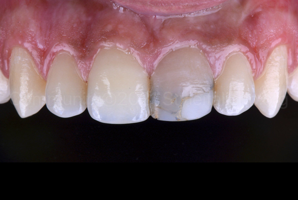 old infiltrated restoration on upper incisor