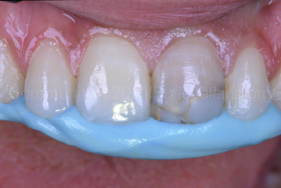 silicone index fabrication inside the mouth