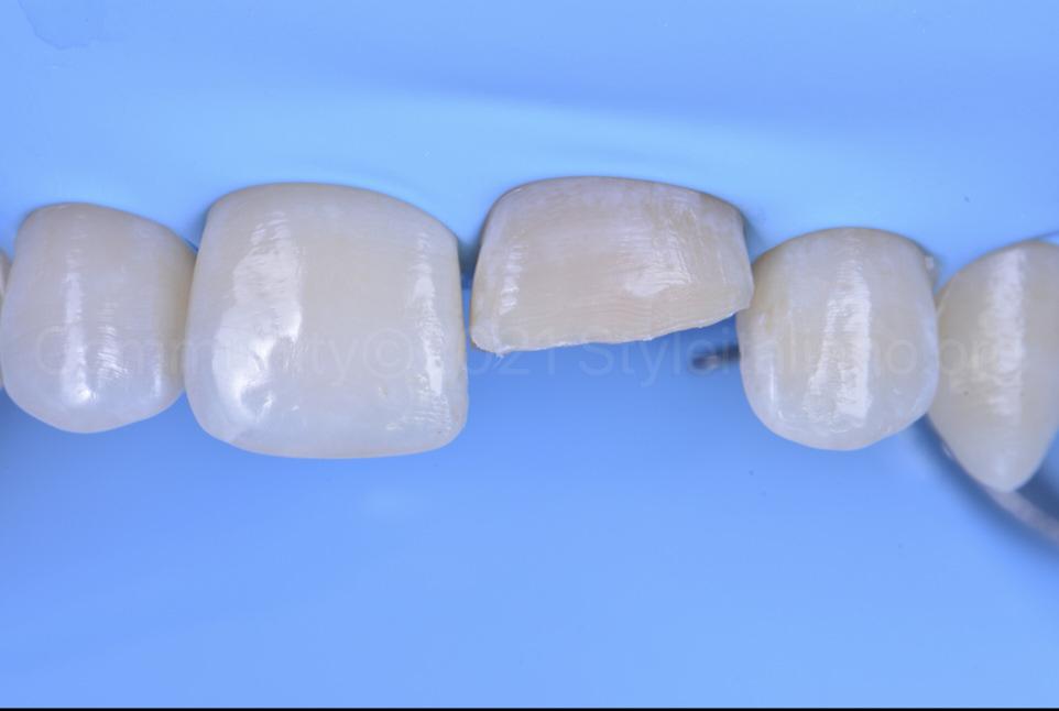 prepared cavity of upper central incisor