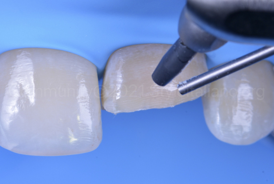 sandblasting a tooth