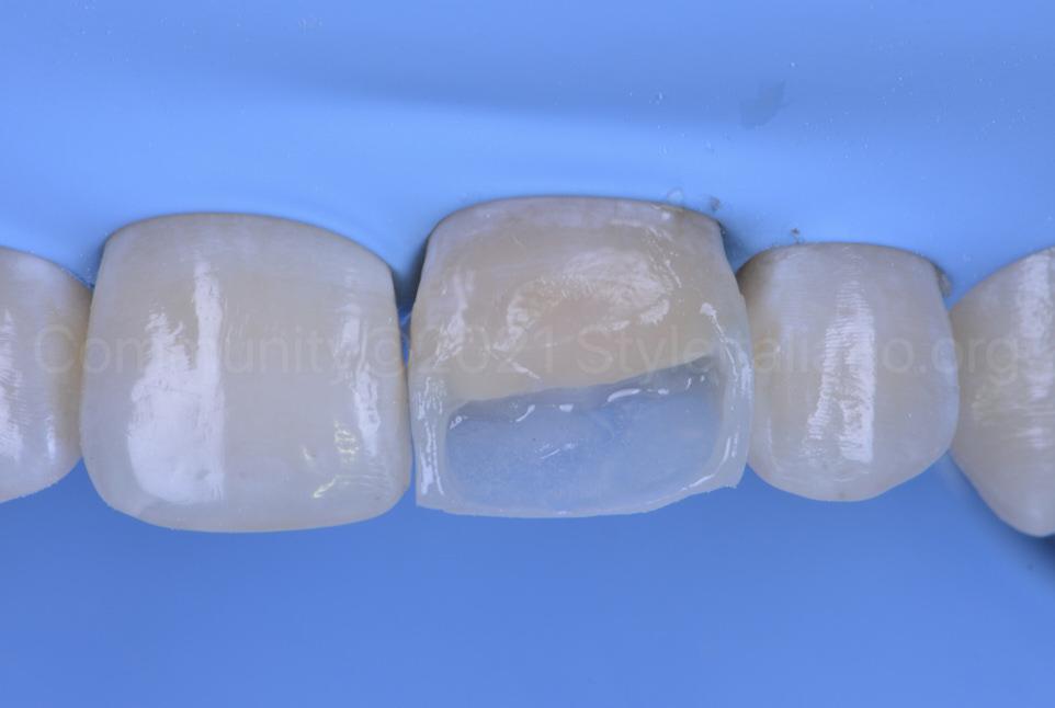 outline of composite restoration of central incisor