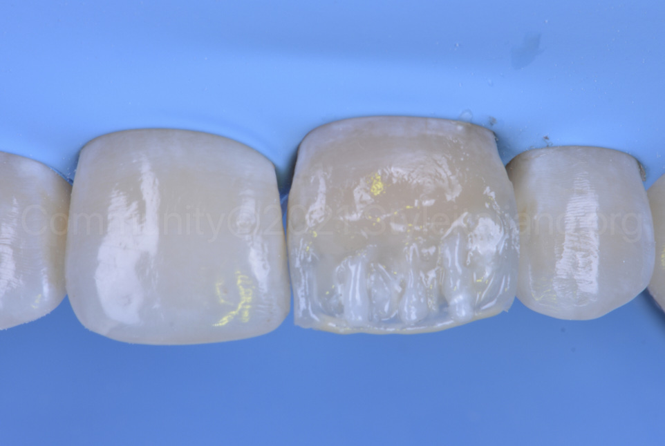 dentin and white composite layering