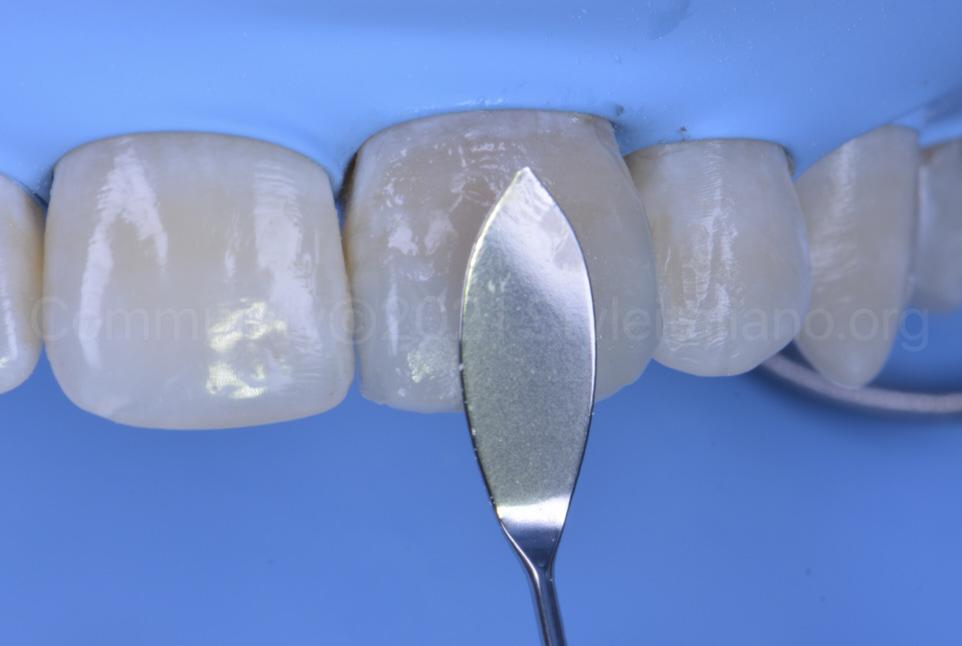 LM arte solo anterior instrument spreading composite mass