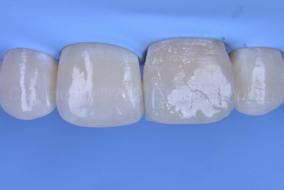 unrefined composite restoration