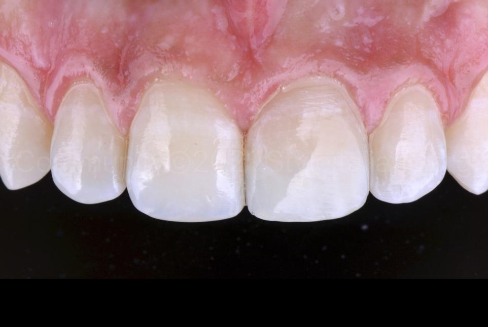 finished and polished single incisor composite restoration