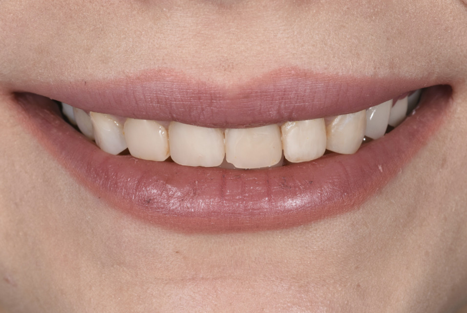 smile with old composite restorations