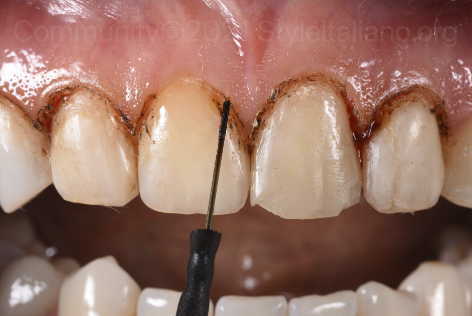 electrosurgery for gum remodelling
