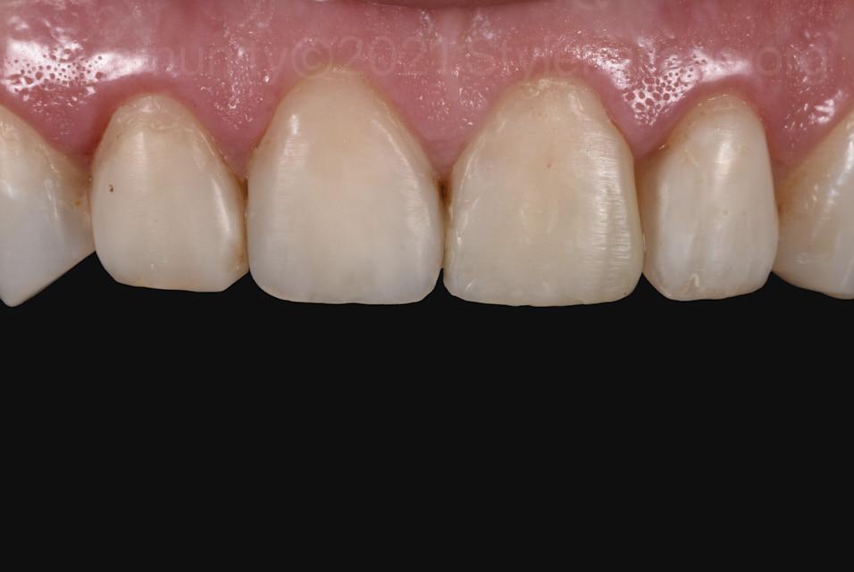 healthy gums after gingivoplasty
