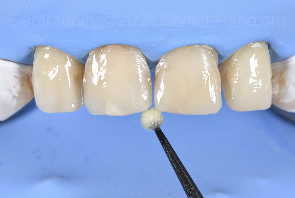 bonding of dental surfaces with a microbrush