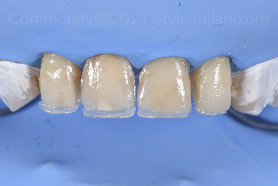 composite palatal shells