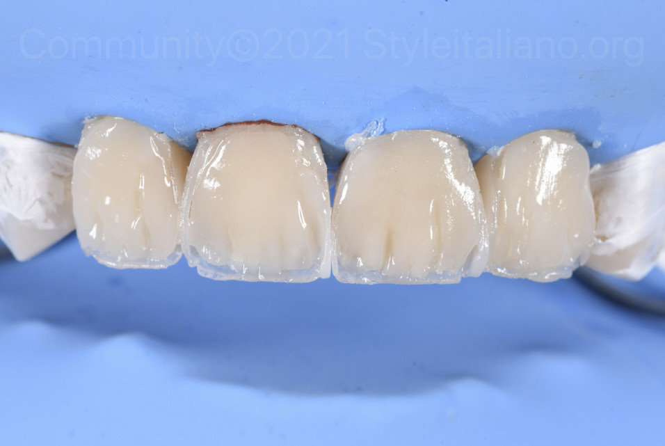 layering of dentin and tmamelons with composite resin