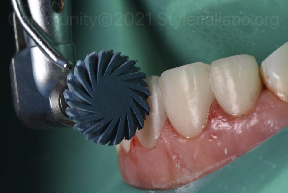 style italiano Minimally invasive repair of old direct anterior composite veneers